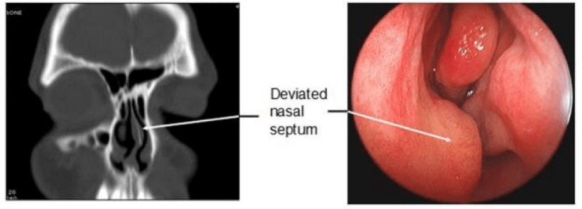 Image demonstrates CT scan and endosasal appearance of a deviated septum
